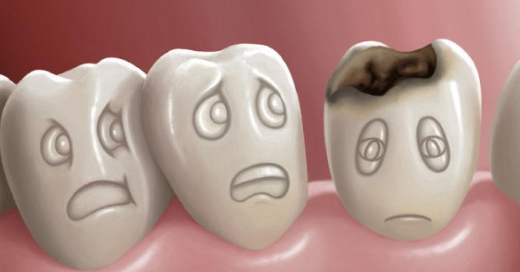 Sigillatura dei denti | Carie